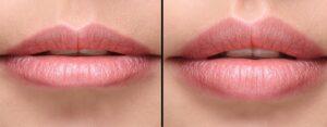 korekcija usana mezokokteli Factor estetic